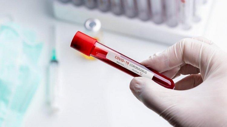 """Covid-19: """"Imensas provas"""" de que coronavírus vem de laboratório em Wuhan"""